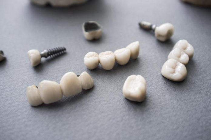 tooth implant singapore